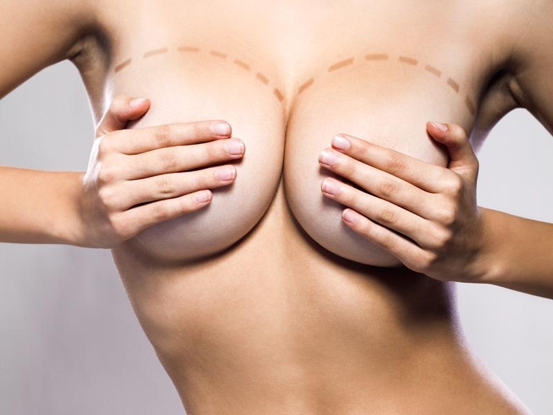 ореолы сосков разного размера фото